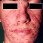 acne IV