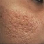acne cicatriz