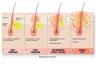 acne - folículo