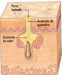 acne - folículo2
