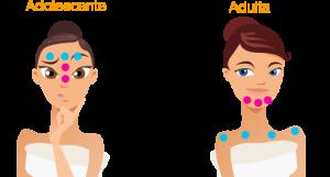 acne -mulher-adulta