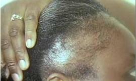 alopecia tração 2 queda de cabelo
