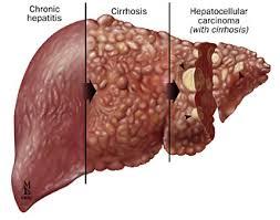 hepatite c cirrose cancer