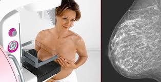 A mamografia é uma radiografia da mama e pode detectar o câncer precocemente