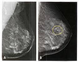 A mamografia é uma radiografia da mama