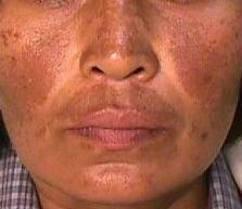 MELASMA: Manchas Escuras na Pele do Rosto