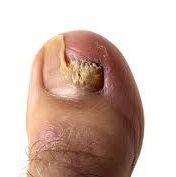 Materiais de manicure/pedicure, se contaminados com fungos, podem transmitir micose de unha também
