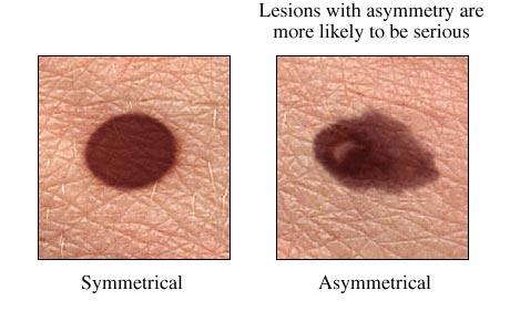 melanoma assimetria