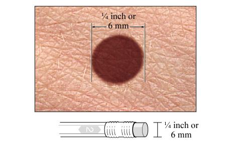 melanoma diâmetro
