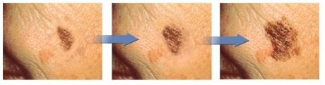 melanoma evolução da lesão