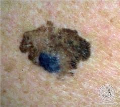melanoma ext sup