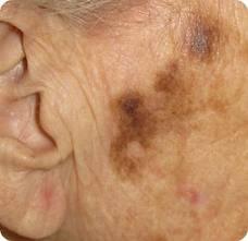 melanoma face