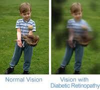 A visão pode ser afetada