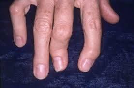 psoriase artrite