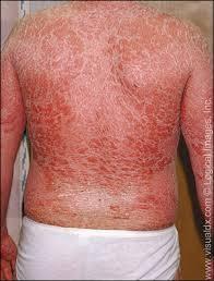 psoriase eritrodermia 3