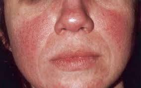 ROSÁCEA: Vermelhidão no Rosto – Causas e Tratamento