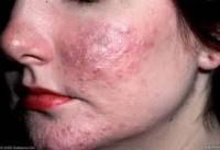 Fase inflamatória - páulas e pústulas semalhantes à acne
