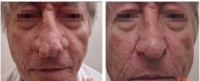 Rinofima: antes e após 6 meses da cirurgia. Fonte: COSTA, T. C. et al. (vide referência)