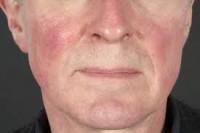 Pré-rosácea - caracterizada por rubor facial