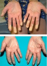 Fenômeno de Raynaud no lúpus eritematoso sistêmico