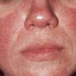 Rosácea 1 lren2v1jq7euubqq59l27np93ec7t0bzg6sm40urmk DIABETES MELLITUS: Causas, Sintomas, Tratamento e Prevenção